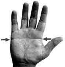 Hand with simian line.