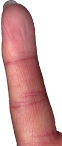 Mercury finger with tip lines